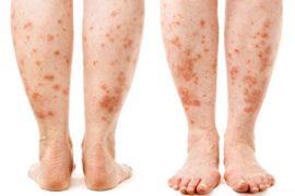 diabetes leg rash